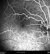 Fluorescein angiography at early phase (macula)