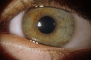 Anterior segment photograph of left eye