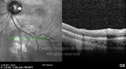 OCT line-scan shows that the retina seems to be recovered of schisis-like
