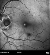 Red-free photograph showing an optic disc pit in a 65-year-old female patient. Visual acuity was 20/60 LE
